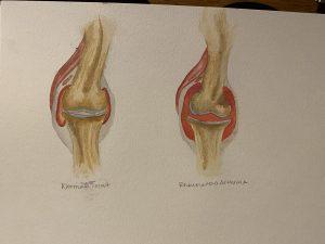 Rheumatoid Arthritis vs. Normal Knee Joint