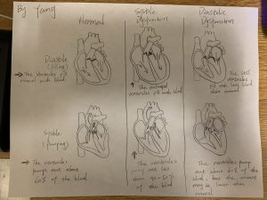 HEART FAILURE Supported Pictures