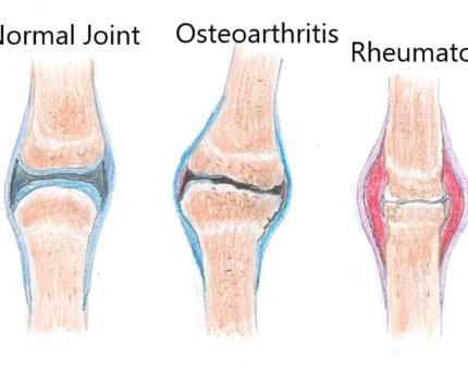 Rheumatoid Arthritis vs Osteoarthritis vs Normal Joint