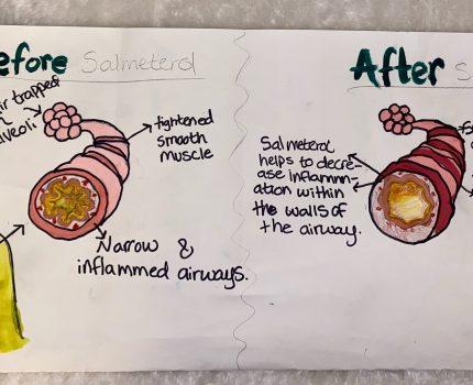 Salmeterol In Emphysema